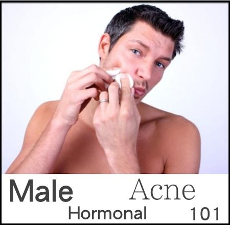 Male Hormonal Acne 101.  Part I: Why Men Get Acne