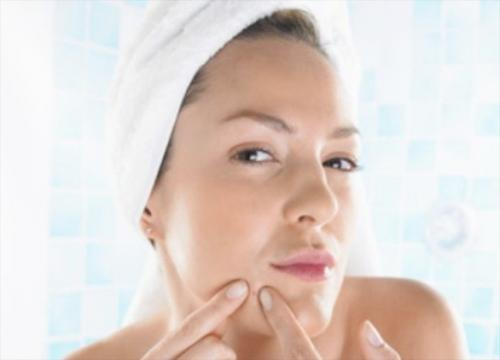 How To Get Rid Of Acne: 5 All-Natural Tips From Top Skincare Experts
