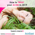 How to treat your acne in 2019